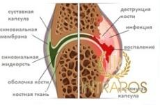 Артрит кистей рук: причины, симптомы, лечение