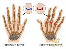 Фото здоровой руки и руки, пораженной артритом