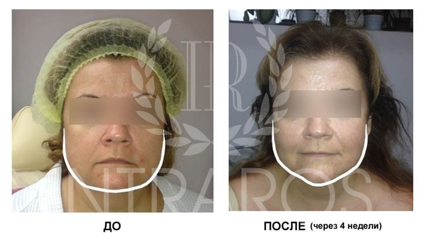 Фото 1. Пациентка А. До и после процедуры тредлифтинга