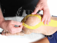 Тейпирование против болей в коленях
